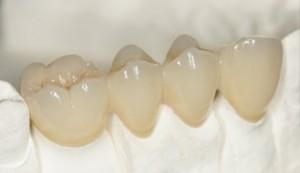 Phục hình cùng răng sứ
