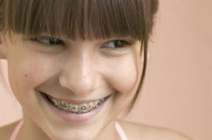 Niềng răng giá rẻ cho người lớn 2