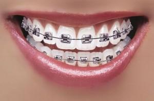 Niềng răng giá rẻ cho người lớn 1