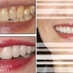 Bọc răng sứ toàn hàm có nguy hiểm không?