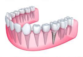 Bác sĩ tư vấn cách chăm sóc răng sau khi cấy implant 1