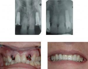 Tính chi phí cho một ca trồng răng implant