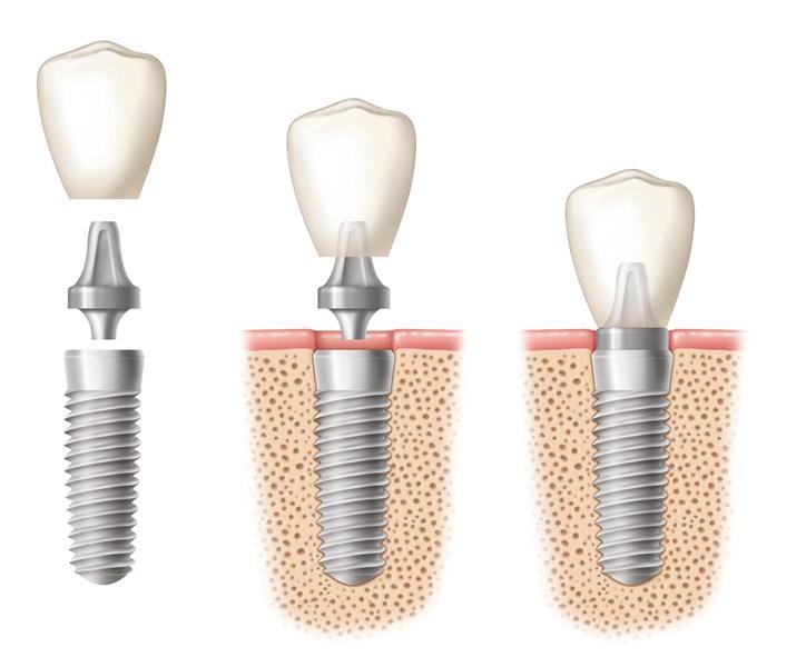 Trồng răng giả ở đâu tốt nhất tại tphcm? 1