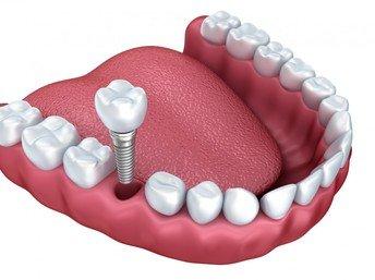Tìm địa chỉ cấy ghép Implant ở đâu tốt? 2