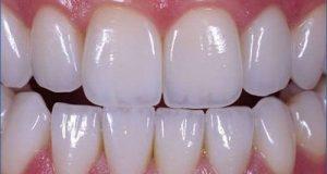 Phương pháp bọc răng sứ có tốt không? 1
