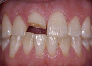 Tình trạng răng sứ bị mẻ vỡ phải làm sao?
