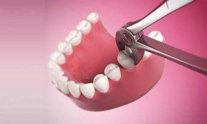 Tìm hiểu phương pháp nhổ răng hàm không đau 1