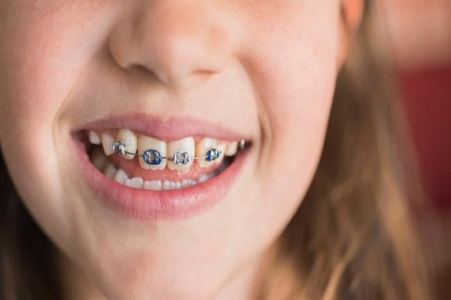 Tìm hiểu về kỹ thuật niềng răng hô hàm trên 3