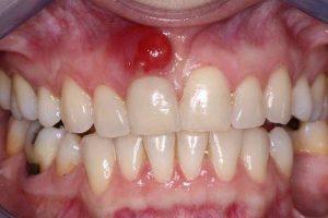 Bệnh lý viêm chân răng có mủ nguy hiểm không? 1