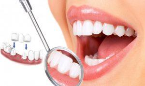 Trồng răng giả cố định có bao nhiêu loại? 1