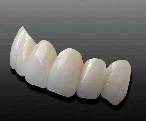 Làm răng sứ không mài răng có được không?