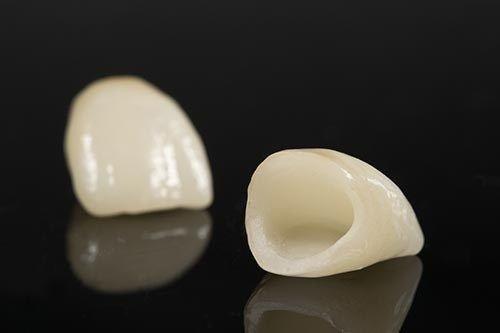 Răng sứ có mài được không? Câu trả lời chính xác